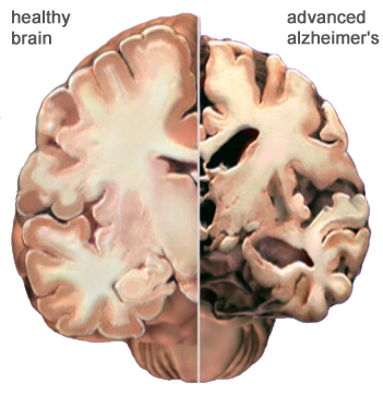 Whats the connection between alzhiemers and prion disease?