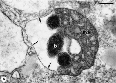 Tick_mitochondrion