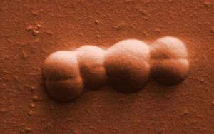 Fig.1.Deinococcus radiodurans